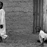 çocuk felci ve islam  çocuk felci