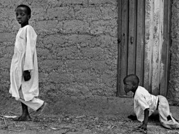 çocuk felci ve islam||çocuk felci