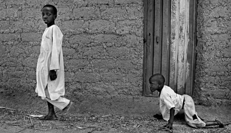 Çocuk Felci ve İslam